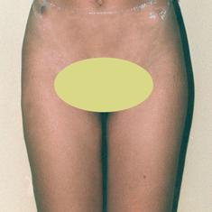 Cirugia genital