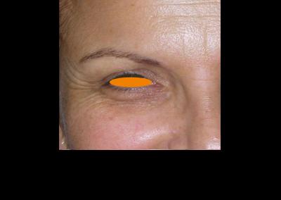 Botox PREVIO