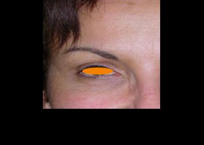 Botox POST