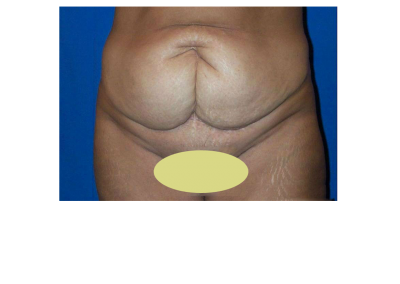 Abdominoplastia PREVIO