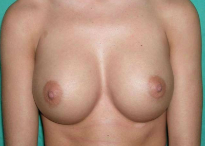 Cirugia mama POST