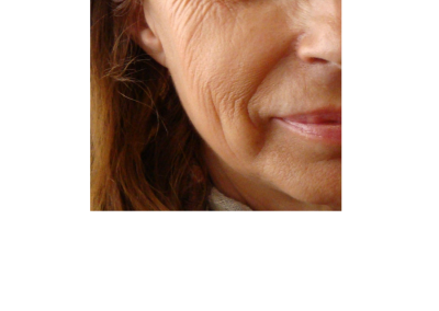 Mesoterapia facial PREVIO