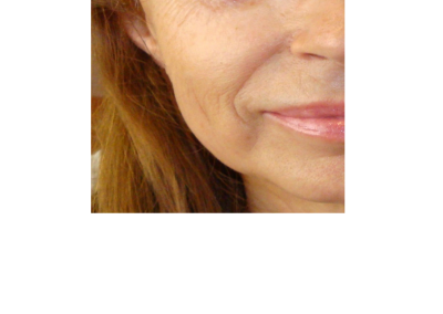 Mesoterapia facial POST