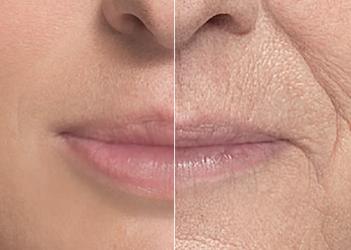 Los labios bien definidos y rellenos son signo de juventud y belleza