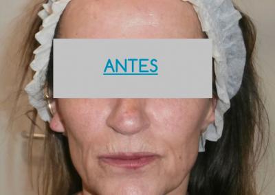 Remodelacion facial PREVIO