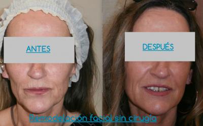 Remodelación facial sin cirugía